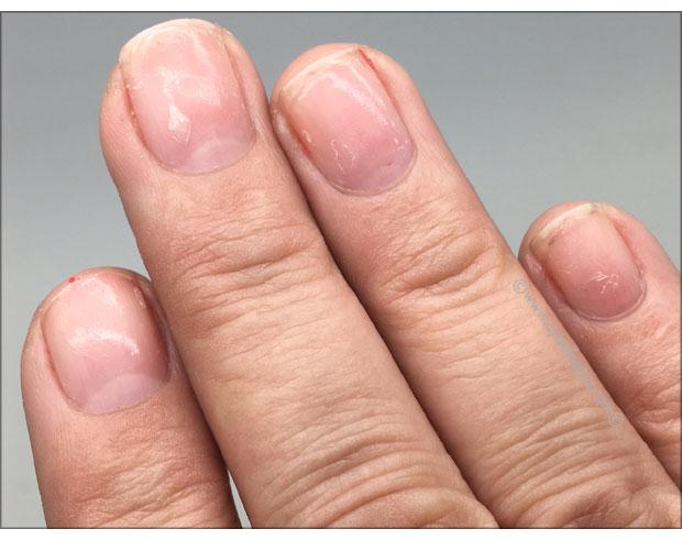 My-nails-after-using-Nailmates