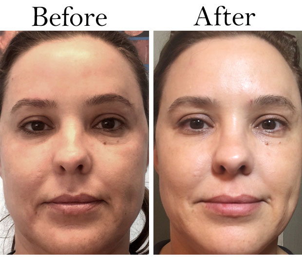 FotoFacial-before-and-after-full-face