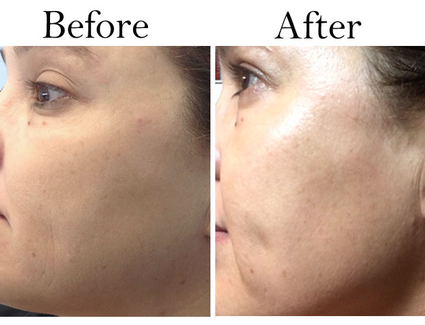 FotoFacial-before-and-after-left-side-of-face