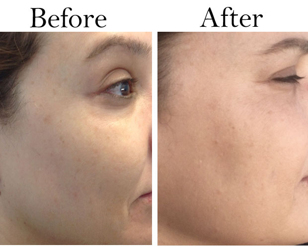 FotoFacial-before-and-after-right-side-of-face