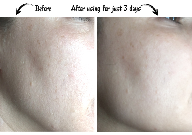 Before-and-After-photo-using-Olay-Regenerist-Micro-Sculpting-Cream